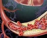Aortic Thrombus (AT)
