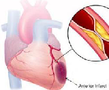 Cardiogenic Shock (CS)