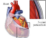 Cardiopericarditis (CP)