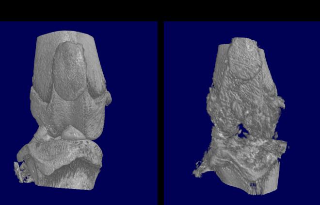 Micro CT image of Osteoarthritis (OA) model