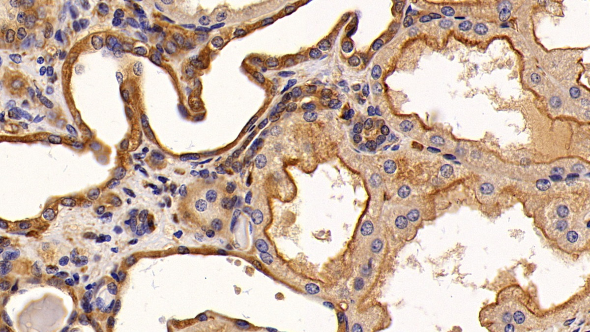 Monoclonal Antibody to Epidermal Growth Factor Receptor (EGFR)