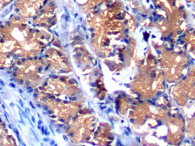 Polyclonal Antibody to Alpha-Fetoprotein (aFP)