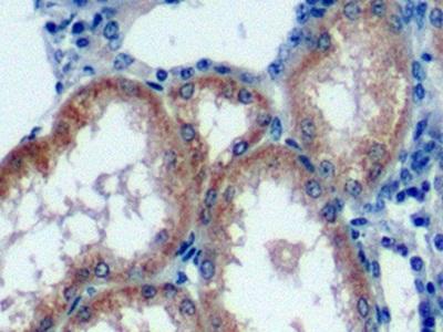 Polyclonal Antibody to V-Rel Reticuloendotheliosis Viral Oncogene Homolog A (RELA)