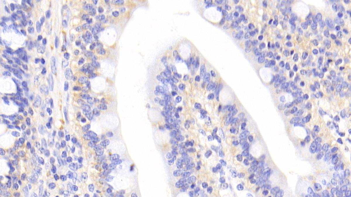 Polyclonal Antibody to Interleukin 1 Receptor Associated Kinase 4 (IRAK4)