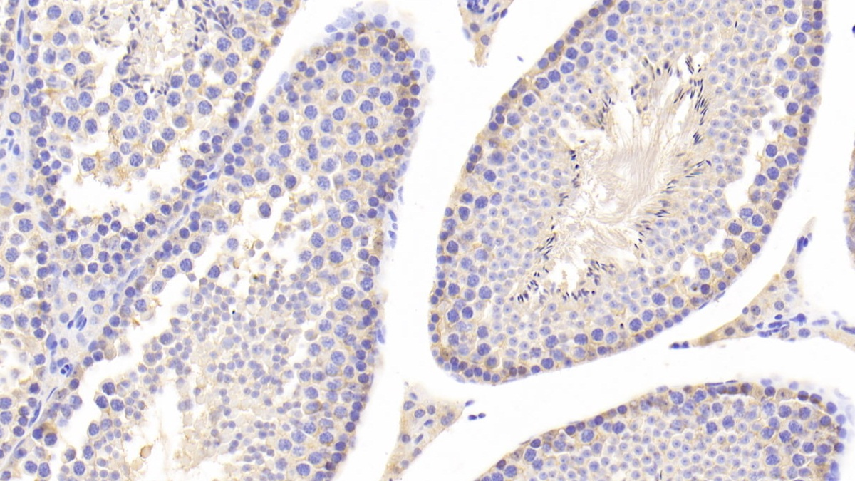 Polyclonal Antibody to Lactate Dehydrogenase B (LDHB)