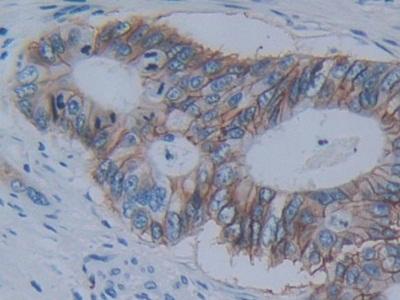 Polyclonal Antibody to Cadherin 17 (CDH17)