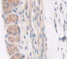 Polyclonal Antibody to Collagen Type VI Alpha 3 (COL6a3)