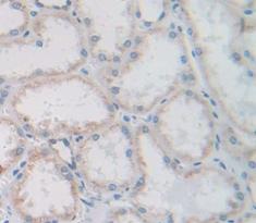 Polyclonal Antibody to Cubilin (CUBN)