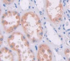 Polyclonal Antibody to Ribonuclease A7 (RNASE7)