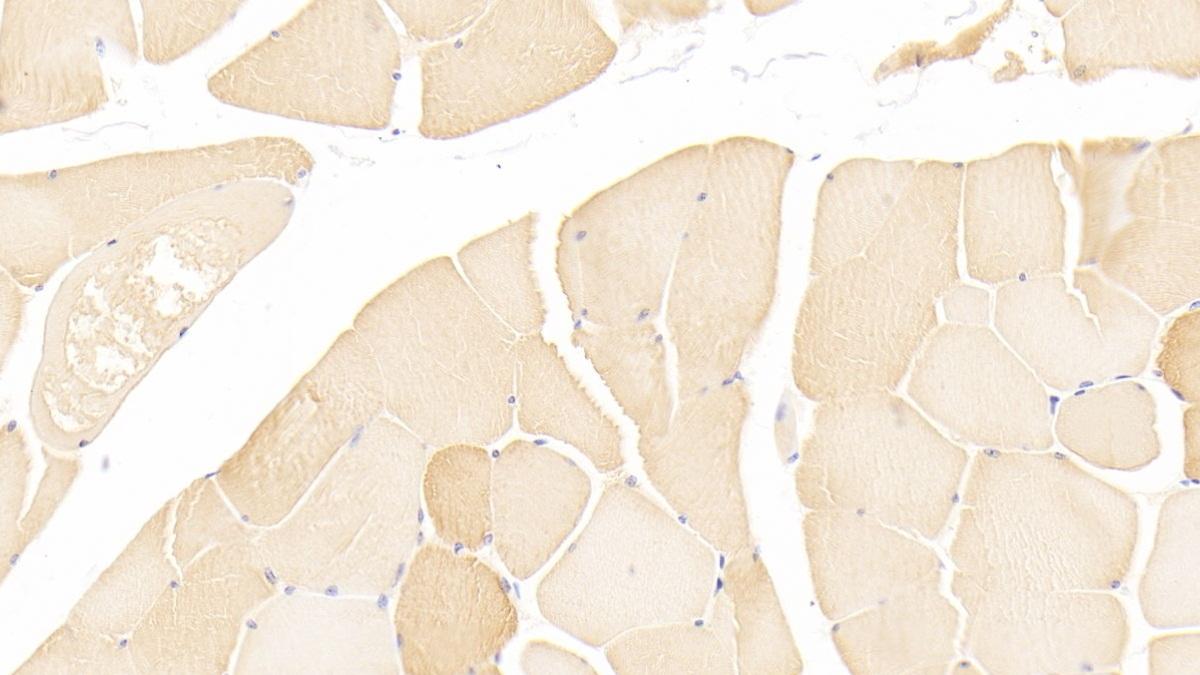 Polyclonal Antibody to Myosin Light Chain 3, Alkali, Ventricular, Slow Skeletal (MYL3)
