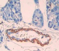 Polyclonal Antibody to Carnitine Palmitoyltransferase 1B, Muscle (CPT1B)