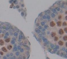 Polyclonal Antibody to Protamine 1 (PRM1)