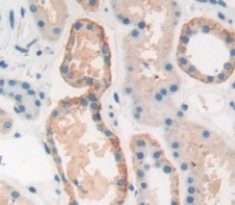 Polyclonal Antibody to Peptidase D (PEPD)
