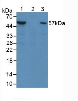 Anti-Phosphorylated Protein Kinase B Alpha (PKBa) Monoclonal Antibody