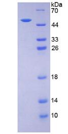 Active Erythropoietin (EPO)