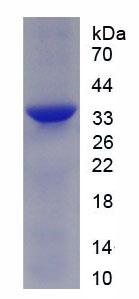 Active Fibronectin (FN)