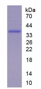 Active Chemokine C-X3-C-Motif Ligand 1 (CX3CL1)