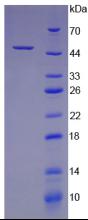 Active Colony Stimulating Factor 2, Granulocyte Macrophage (GM-CSF)