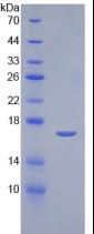 Active Interleukin 2 (IL2)