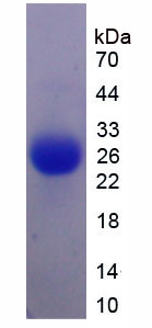 Active Interleukin 6 (IL6)