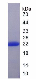 Active Matrix Metalloproteinase 13 (MMP13)