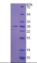 Active Superoxide Dismutase 3, Extracellular (SOD3)