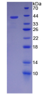 Active Stromal Cell Derived Factor 1 (SDF1)