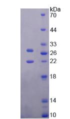 Active Tissue Inhibitors Of Metalloproteinase 3 (TIMP3)