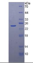 Active Tissue Inhibitors Of Metalloproteinase 4 (TIMP4)