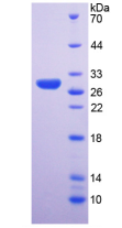 Active Ribonuclease P (RNASEP)
