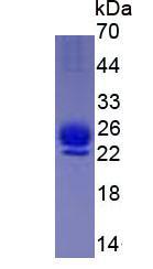 Active Interleukin 1 Receptor Antagonist (IL1RA)