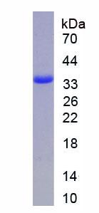 Active Annexin V (ANXA5)