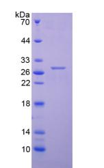 Active Troponin I Type 3, Cardiac (TNNI3)