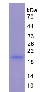 Active Interleukin 1 Beta (IL1b)