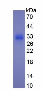 Active Procollagen III N-Terminal Propeptide (PIIINP)