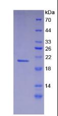 Active Fibrillin 1 (FBN1)