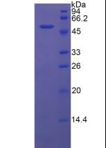 Active Dickkopf Related Protein 1 (DKK1)