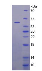 Active Lipoprotein, a (Lpa)