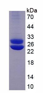 Active Prolactin (PRL)
