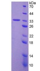 Active Tumor Protein p53 (P53)