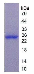 Active Glutathione S Transferase Pi (GSTp)