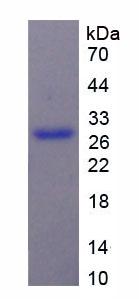 Active Melanoma Associated Chondroitin Sulfate Proteoglycan (MCSP)