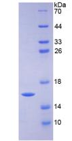 Active Heart-type Fatty Acid Binding Protein (H-FABP)