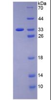 Active Vascular Endothelial Growth Factor Receptor 2 (VEGFR2)