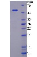 Active Lipopolysaccharide Binding Protein (LBP)