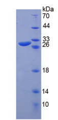 Active Glycoprotein 39, Cartilage (GP39)
