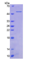 Active Tumor Necrosis Factor Receptor Superfamily, Member 1B (TNFRSF1B)