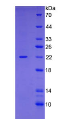 Active Cofilin 1, Non Muscle (CFL1)