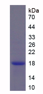 Active Secondary Lymphoid Tissue Chemokine (SLC)