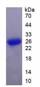 Active Suppressors Of Cytokine Signaling 3 (SOCS3)